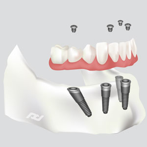 All-on-4 Dental Implants in Berkeley, CA