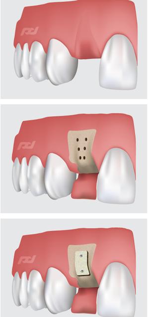 Perio Surgery | Berkeley Periodontics & Dental Implants- Berkeley, CA